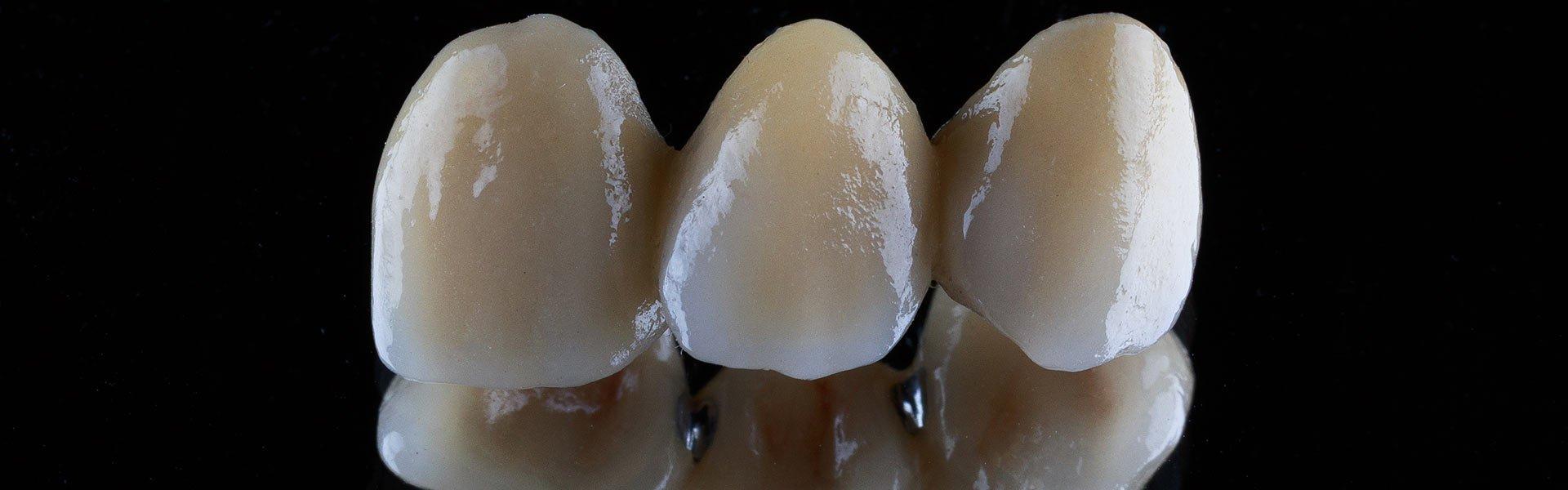 Dental bridge on black background