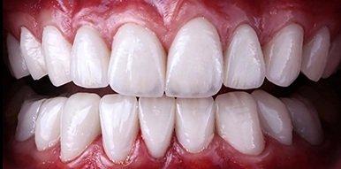 Teeth after dental crowns