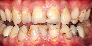 Teeth before having dental crowns