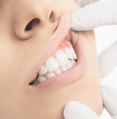 Dentist examining patient with gummy smile