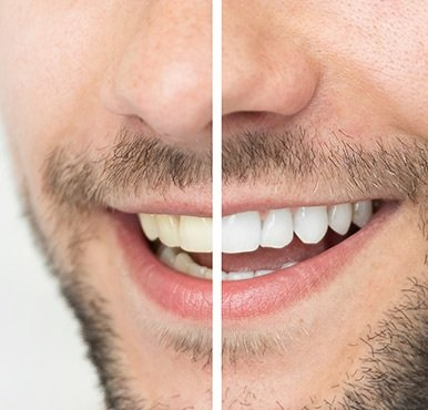 Man before and after teeth whitening treatment