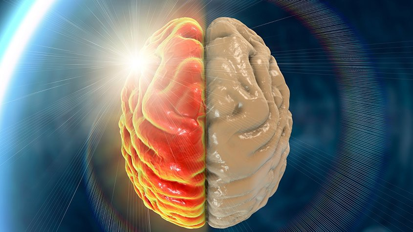 Illustration of migrane on the brain