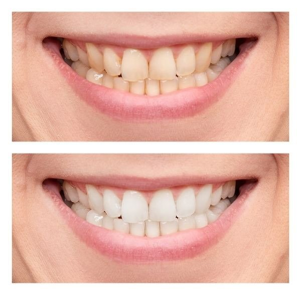 Woman smiling before and after tooth whitening at Torquay Dentist