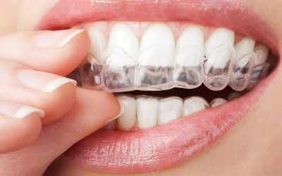 Tooth Whitening in Torquay